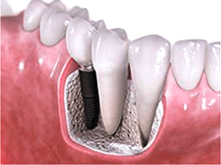 dental-implants-page-image